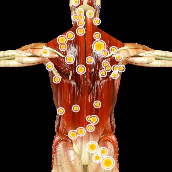 Trigger Point Therapy, Olympia Acupuncture